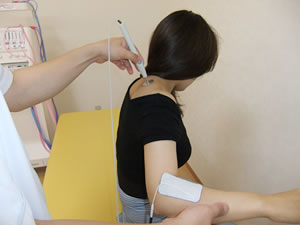 高電圧刺激療法